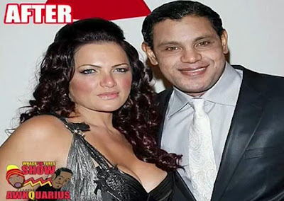 Sammy Sosa Bleached Skin Wanna Be Like Michael Jackson And White