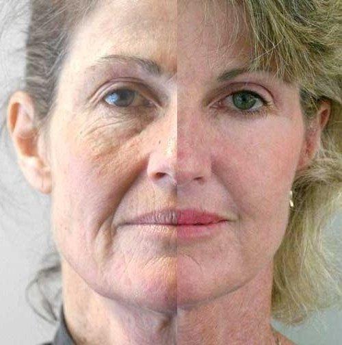 facial short course