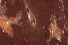 Corte  del  hígado. Piedra   alojada  en  el  conducto  hepatico.