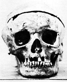 Ludwig van Beethoven's skull