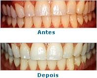 Dentes Polidos Vantagens E Desvantagens Dos Tratamentos Caseiros