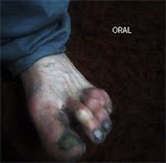 oral II