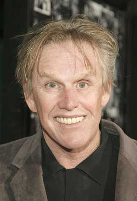 Plastic Surgery gone bad of Gary Busey