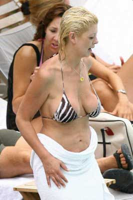 Plastic Surgery gone bad of Tara Reid