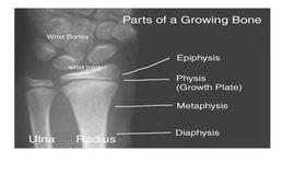 Gambar 1. Bagian-bagain dari tulang immatur