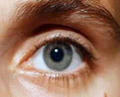 O que é astigmatismo?