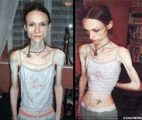 lindsay lohan anorexia. anorexia becoming anorexic