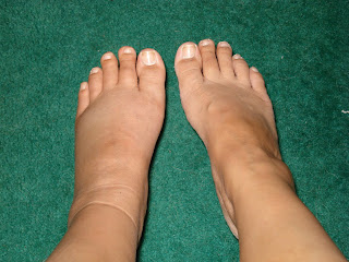 how to tell if your foot is broken or bruised