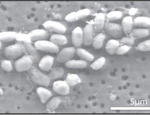 Vida no espaço - Bactéria vive a base de Arsênico. JediMasterHouse