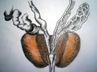 Аденом на простатната жлеза
