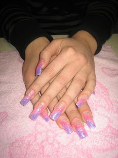 How do you treat fingernail fungus caused by acrylic nails?
