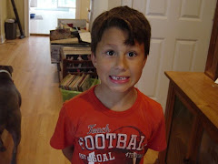 Joshua missing two front teeth