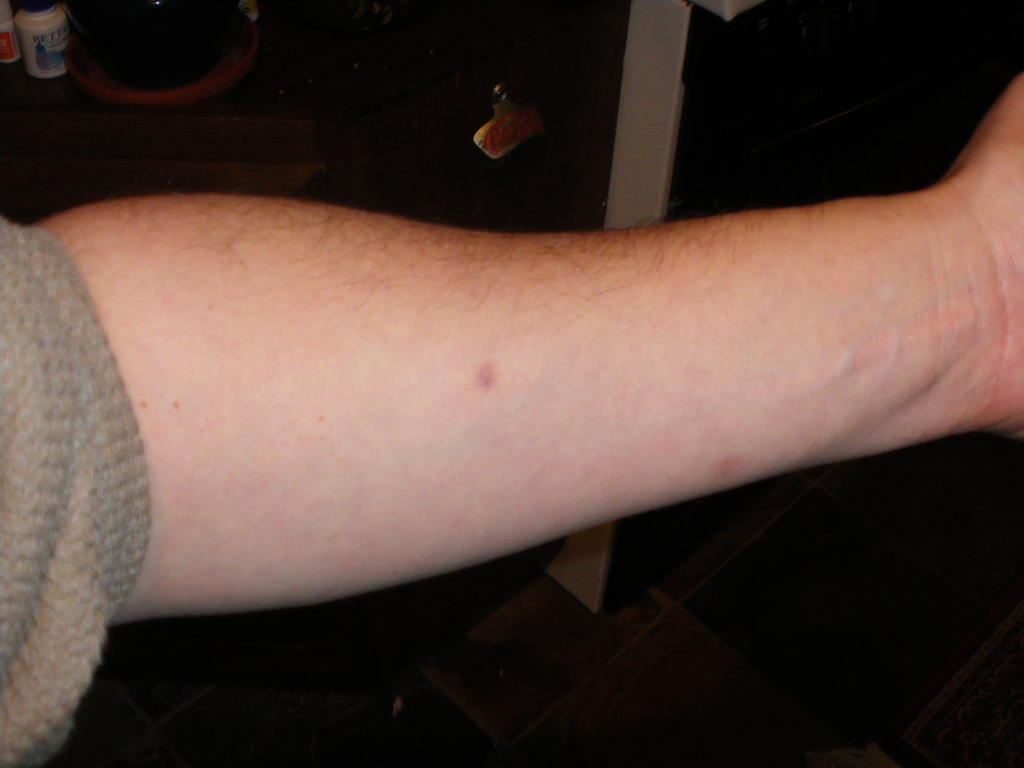 While in this picture this person underwent the mantoux test and was