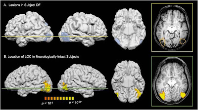 the brain and the sky: The case of DF (visual form agnosia)