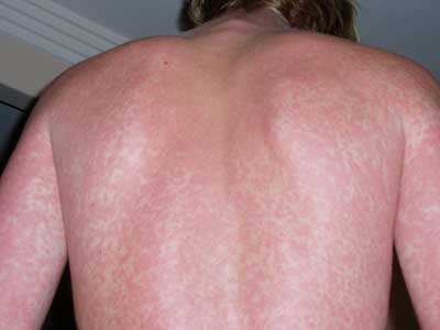 Rashes On Skin