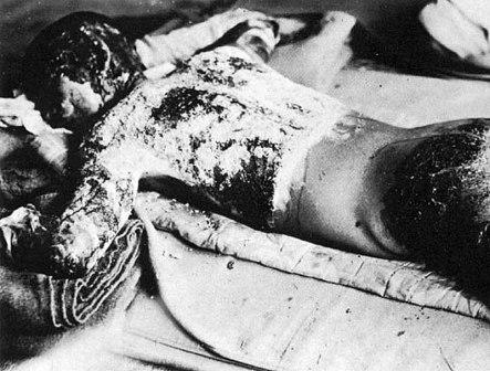 http://1.bp.blogspot.com/_un8Ig5fvqcQ/TDFbTbngpYI/AAAAAAAAAmo/00Ai2u6jZdg/s1600/victim_of_atomic_bomb_002.jpg