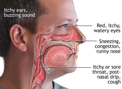 Post Nasal Drip Throat Symptoms