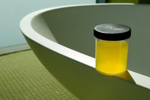Urine therapy urine therapy for acne scars a natural miracle cure