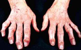 http://1.bp.blogspot.com/_ut8r1RPc-JE/S1s7u-JM0aI/AAAAAAAABcg/Xz7GuBloO2w/s320/osteoartrosis.bmp.jpg