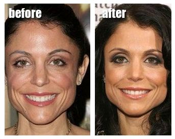 Did Bethenny Frankel have a nose job? (image hosted by http://plasticsurgerydoctors.blogspot.com)