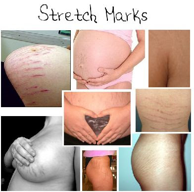 stretch+marks.JPG