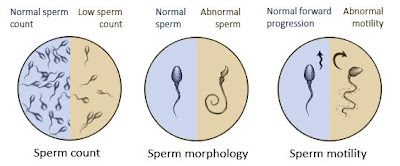 Count low pregnant sperm