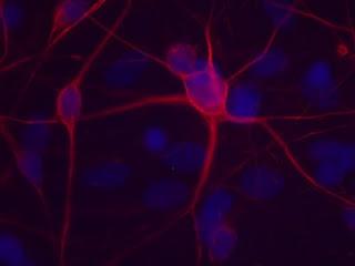 Motor neurons.
