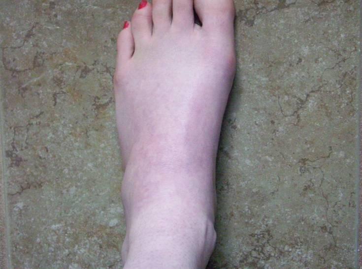 Ganglion Cysts - Foot - Orthopedics Library Demo