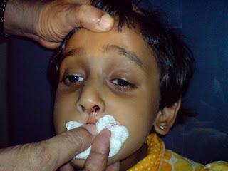 عشبة الطير Chickweed لعلاج الربو  وعسر الهضم  ونزيف الأنف Nose-bleed-in-childr