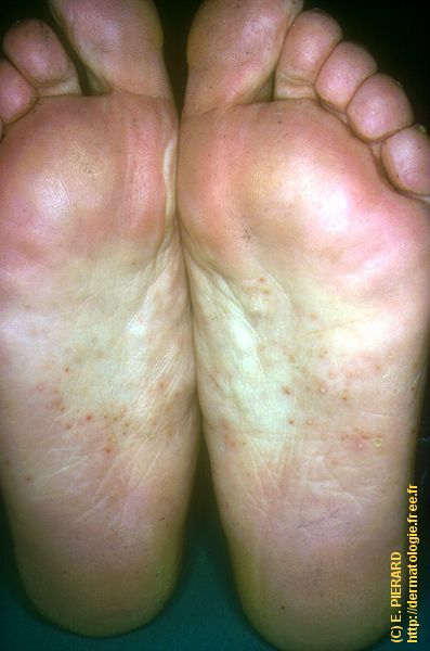Eczema Treatment, Home Remedies, and Causes