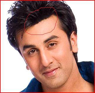 Ranbir Kapoor Hair Transplant
