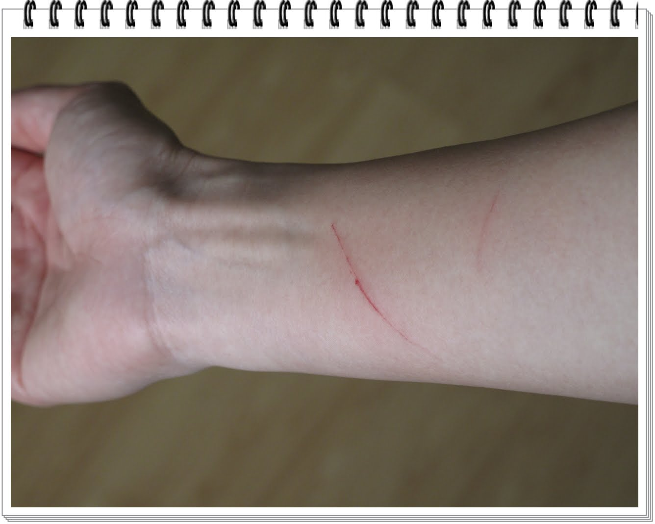self harm cutting quotes
