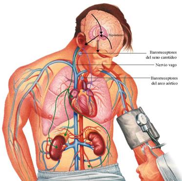 La osteocondrosis con 3 por 12 vértebra