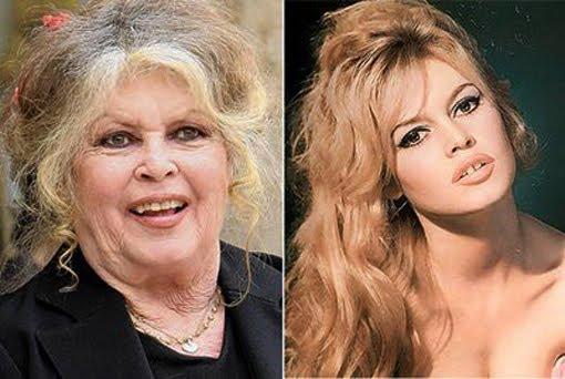 brigitte antes e depois
