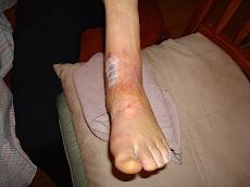 ORIF Ankle postop