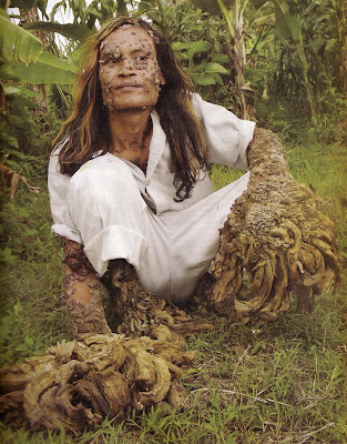 dede tree man. Dede the Indonesian Tree man