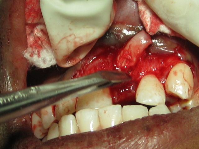 Complex Odontoma