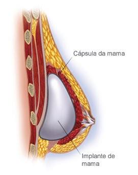 Peito durante muitos anos de um mammoplastik