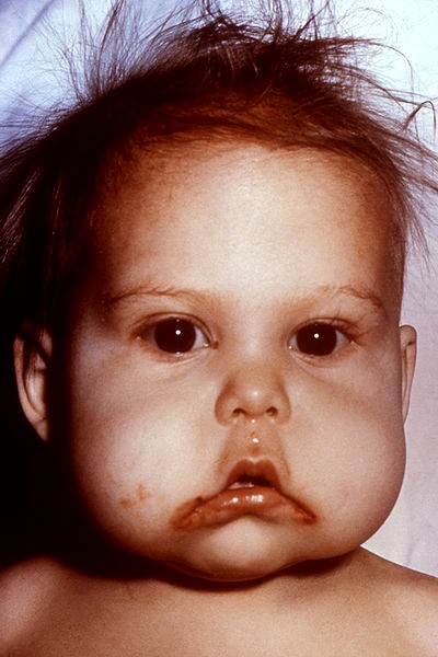 problem for the deficiency of infant Iron-deficiency anemia is a common infections, problems with growth and development in can help prevent iron-deficiency anemia in infants and young.