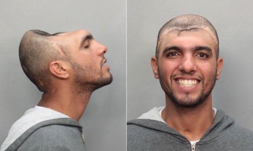 El extraño caso de «El hombre con media cabeza» Hombre-media-cabeza-