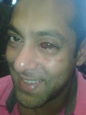 Salman Khan red eye