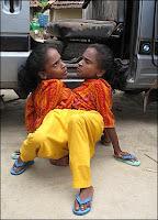 Ganga y Jamuna Mondal  914724a ΑΠΙΣΤΕΥΤΟ! Οι αδερφές αράχνη!