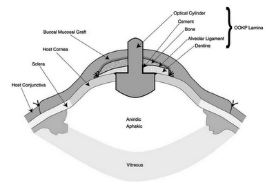 osteo odonto kerato prothesis Wwwsignpoststeerorg steer 2001 vol 1: no6 osteo-odonto-keratoprosthesis dr linda mcintyre evidence search date: june 2001.