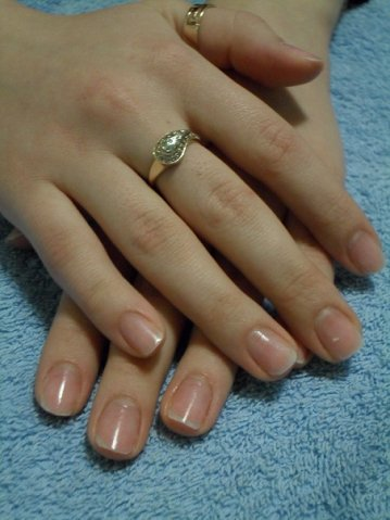 Состояние ногтей после снятия геля.