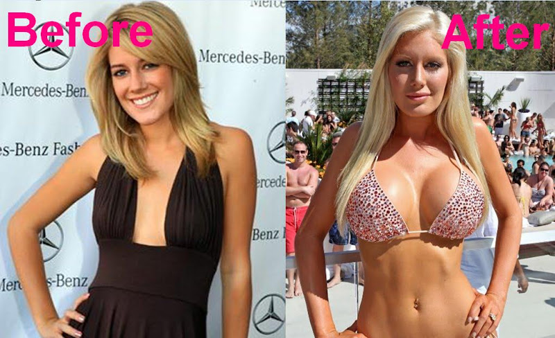 heidi montag before and after. heidi montag before and after.