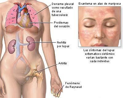 magnesio per acido urico tratamiento para la gota en el dedo del pie acido urico gota fotos