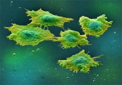 El Cancer - Sabes toda la verdad? lo DUDO... [MegaTema]