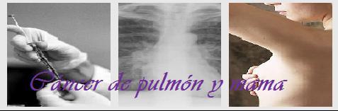 Cáncer de pulmón y mama