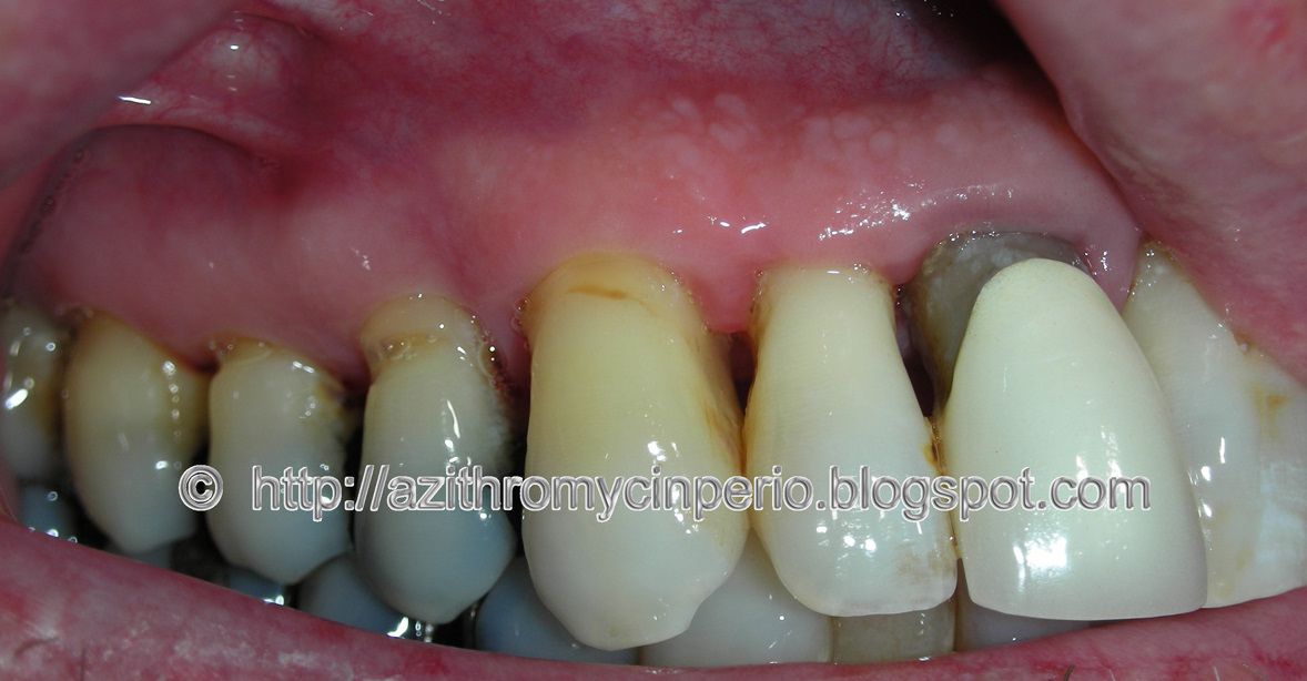 amoxicillin 500mg tooth infection