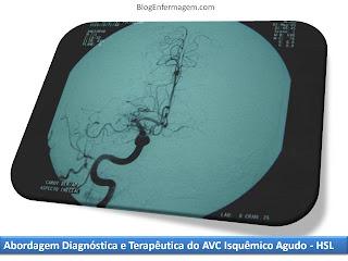 [Texto]  Abordagem Diagnóstica e Terapêutica do AVC Isquêmico Agudo - HSL